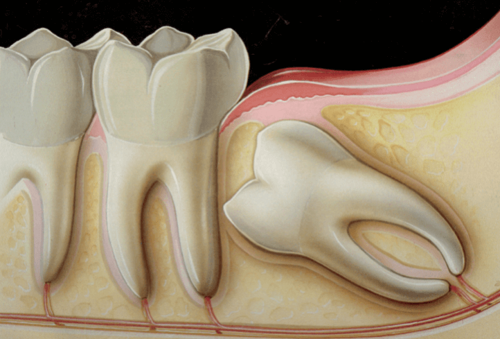 wisdom-teeth-extraction-removal-paris-tx-dentist