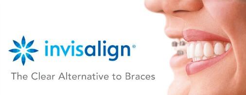 Invisalign Clear Braces - Dentist Paris TX