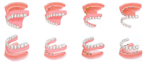 Teeh In A Day - Full Teeth Replacement - Dentist Paris TX