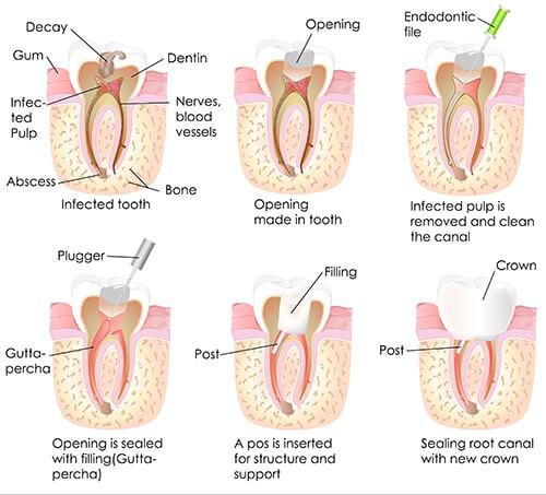 dental-root-canals-paris-tx-dentist