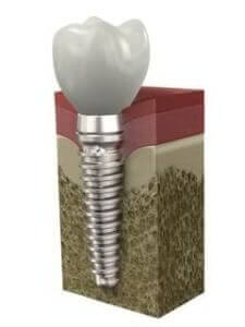 Implant Dentistry - Dentist Paris TX