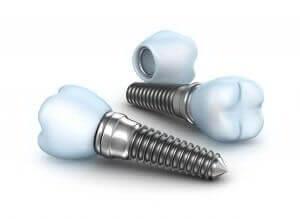 Implant Dentistry - Paris TX Dentist