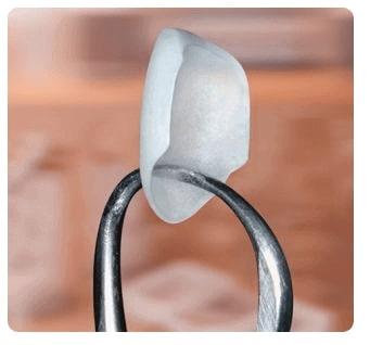 Porcelain Veneers - Dentist Paris TX