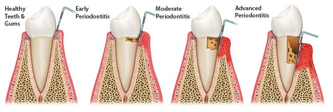 periodontal-treatment-paris-tx-dentist