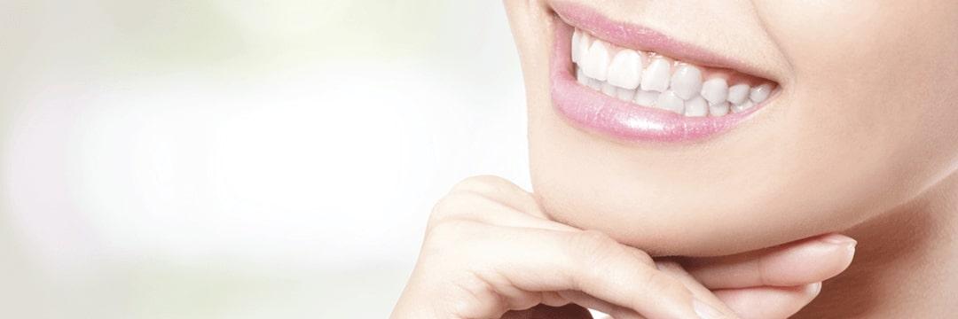 Teeth Whitening - Dentist Paris TX